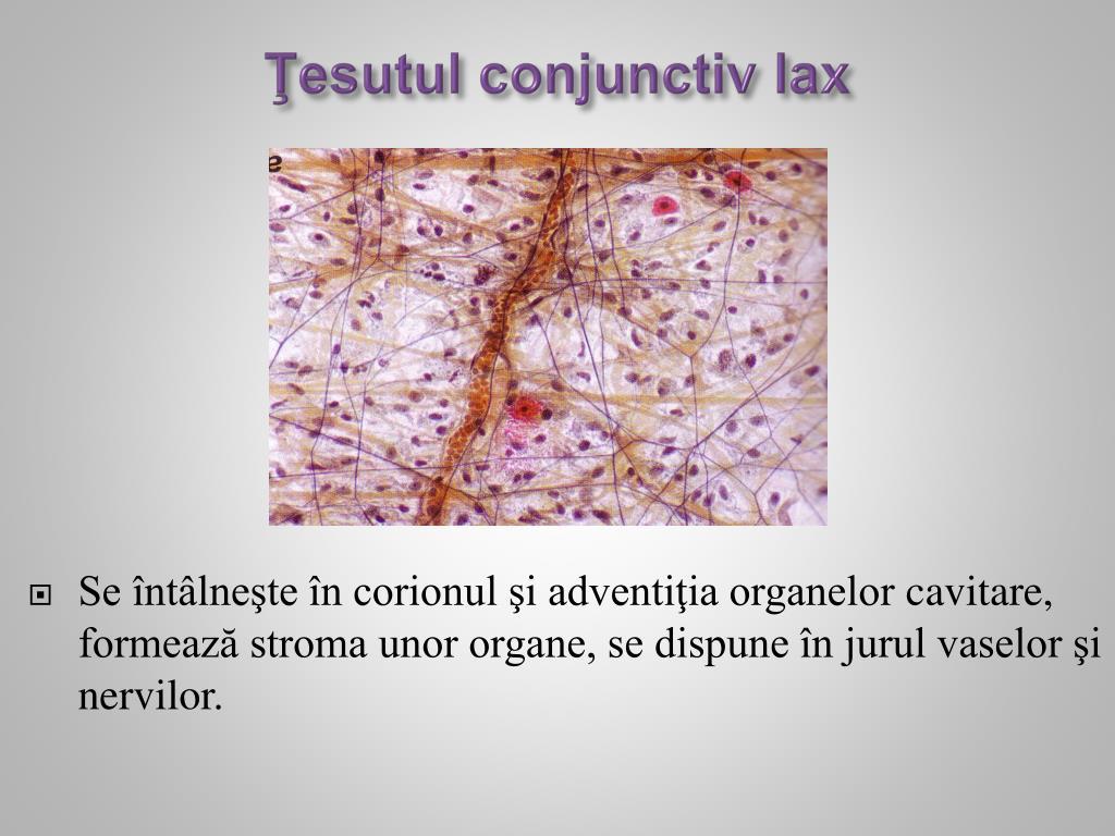 ceea ce înseamnă boală a țesutului conjunctiv