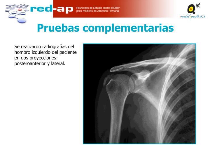 Se realizaron radiografías del hombro izquierdo del paciente en dos proyecciones: posteroanterior y lateral.