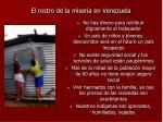 el rostro de la miseria en venezuela