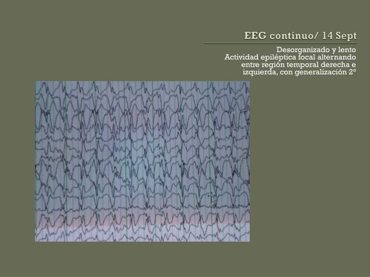 EEG continuo/ 14