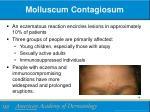 molluscum contagiosum2