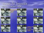 bucket tip sequence set at practical value