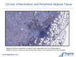 chronic inflammation and peripheral adipose tissue