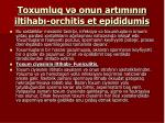 toxumluq v onun art m n n iltihab orchitis et epididumis