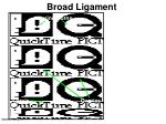 broad ligament1