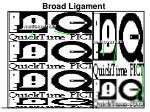 broad ligament2