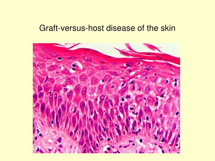 Graft-versus-host disease of the skin