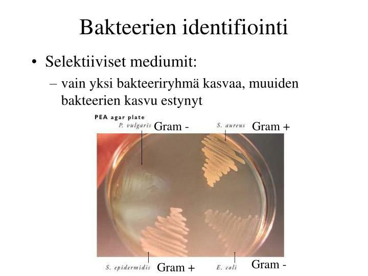 Bakteerien identifiointi