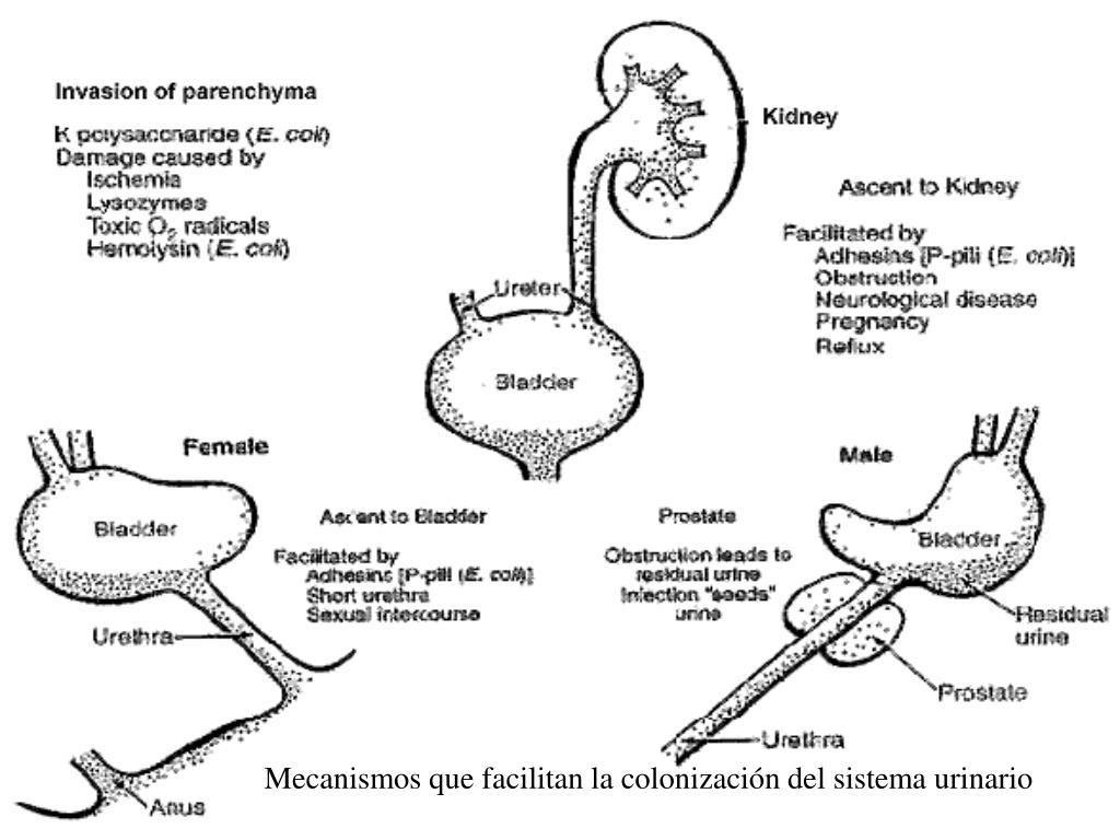 PPT - Mecanismos que facilitan la colonización del sistema urinario ...