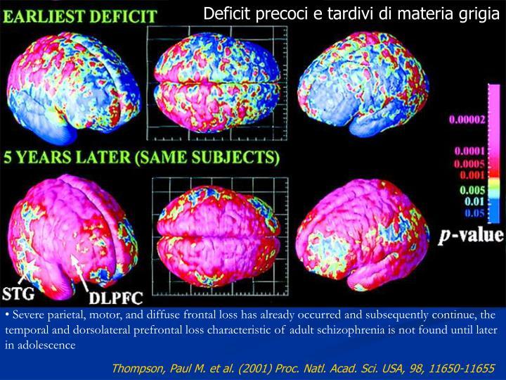 Deficit precoci e tardivi di materia grigia