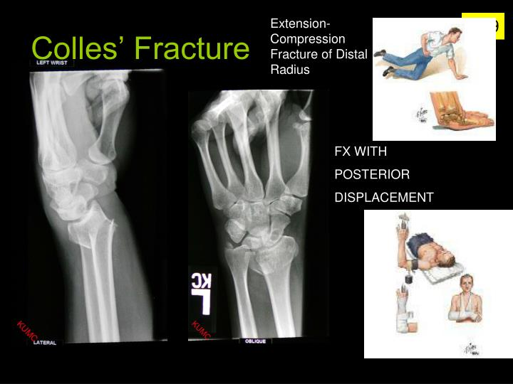 Extension-Compression Fracture of Distal Radius