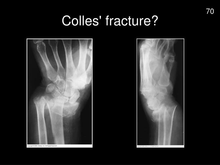 Colles' fracture?