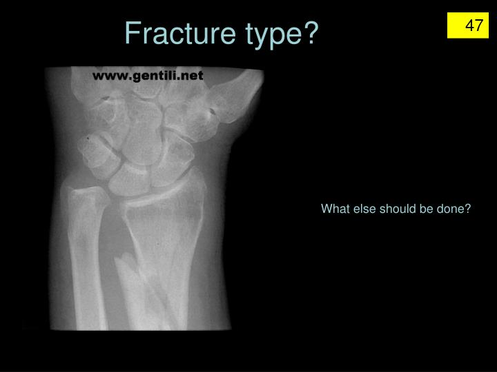Fracture type?