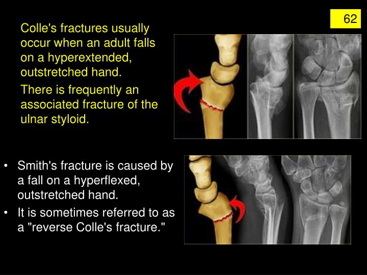 Colle's fractures usually occur when an adult falls on a hyperextended, outstretched hand.