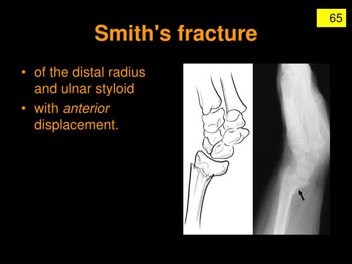 Smith's fracture