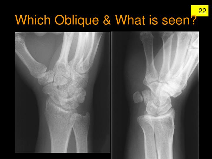 Which Oblique & What is seen?