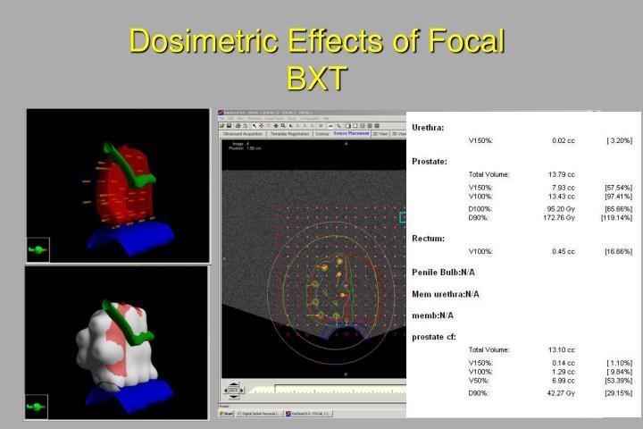 Dosimetric Effects of Focal BXT