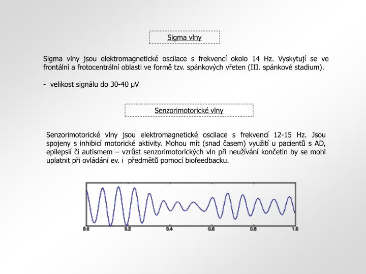 Sigma vlny