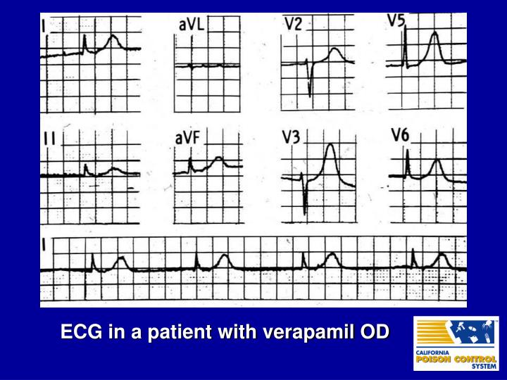 ECG in a patient with verapamil OD