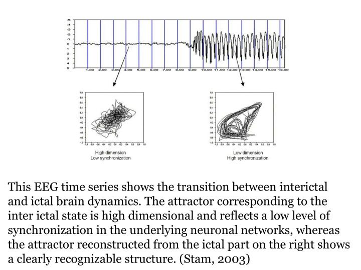 This EEG time series shows the transition between