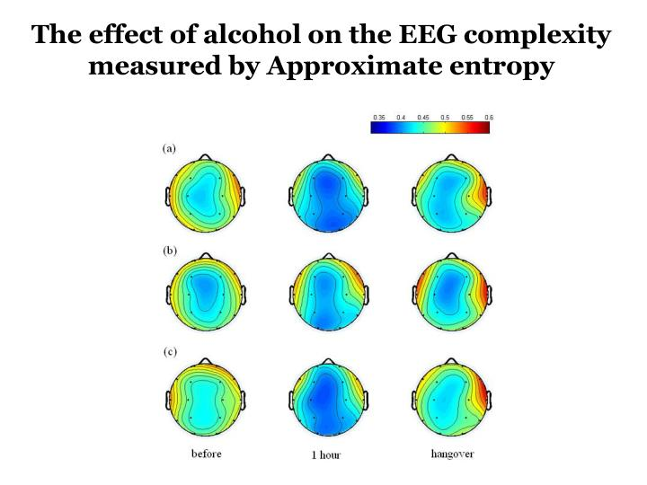 The effect of alcohol on the EEG complexity measured by Approximate entropy