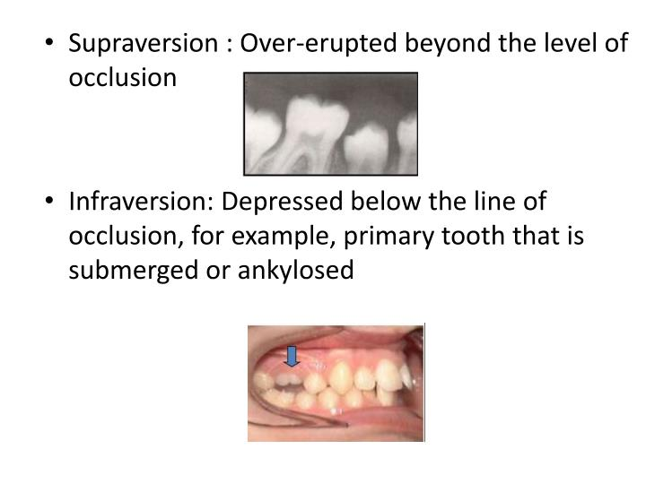 Supraversion : Over-erupted beyond the level of occlusion