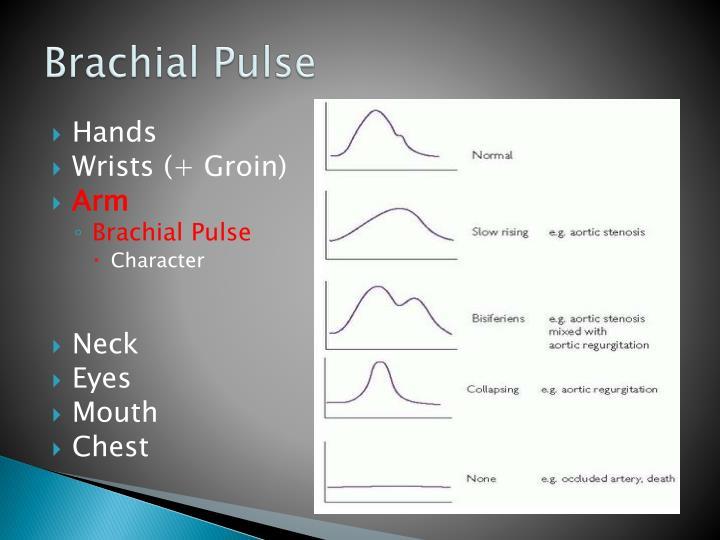 Brachial Pulse