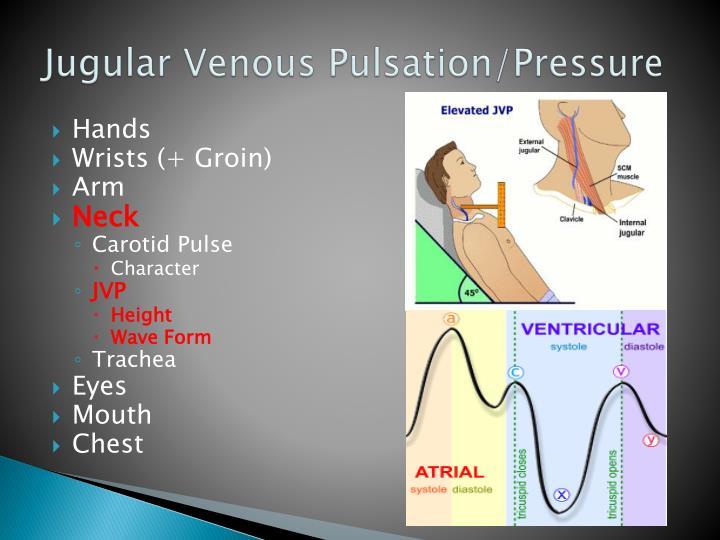 Jugular Venous Pulsation/Pressure