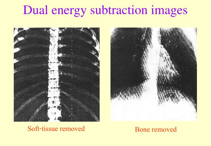 Dual energy subtraction images