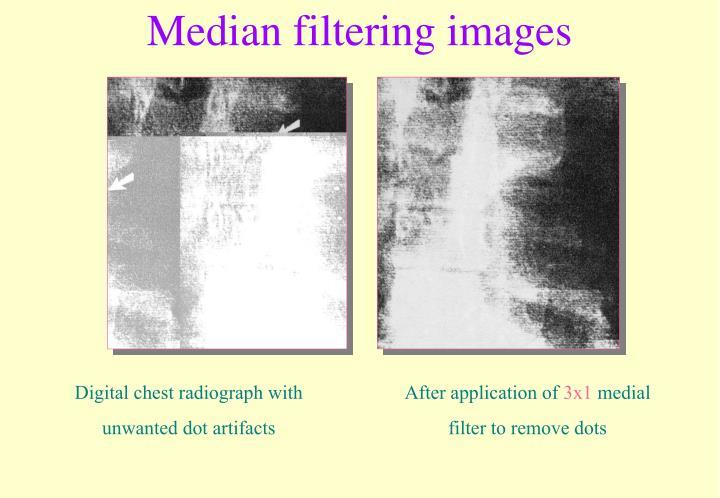 Median filtering images