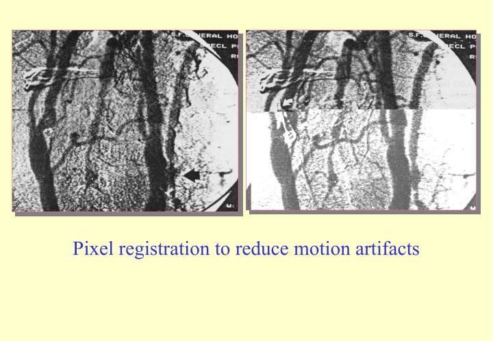 Pixel registration to reduce motion artifacts