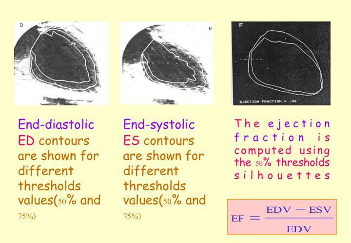 End-diastolic