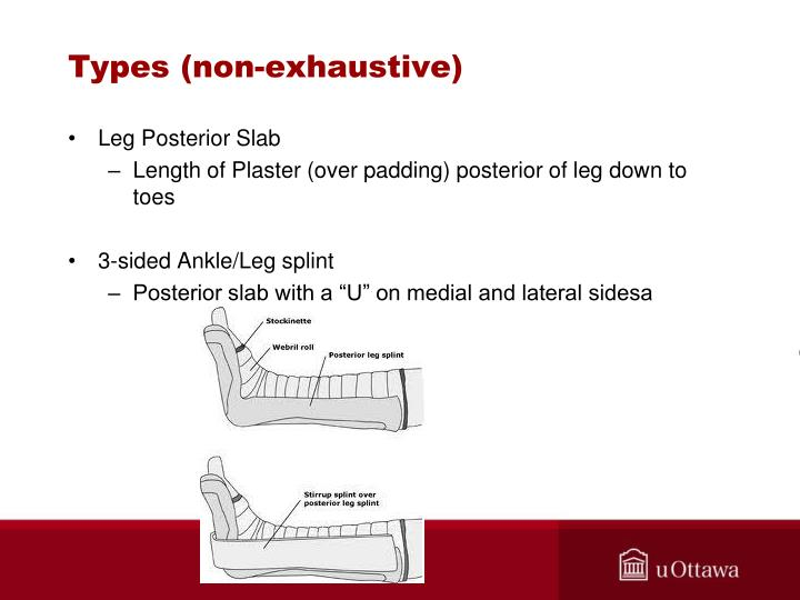 Ppt Casting Amp Splinting Compartment Syndrome Powerpoint