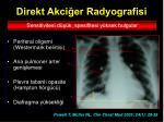 direkt akci er radyografisi1