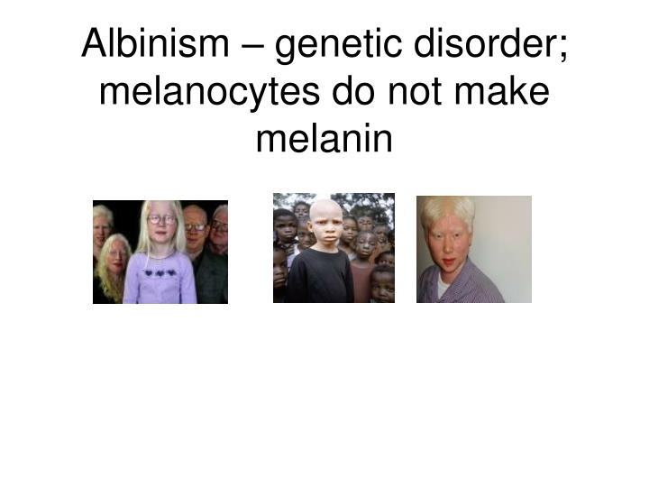 Albinism – genetic disorder; melanocytes do not make melanin