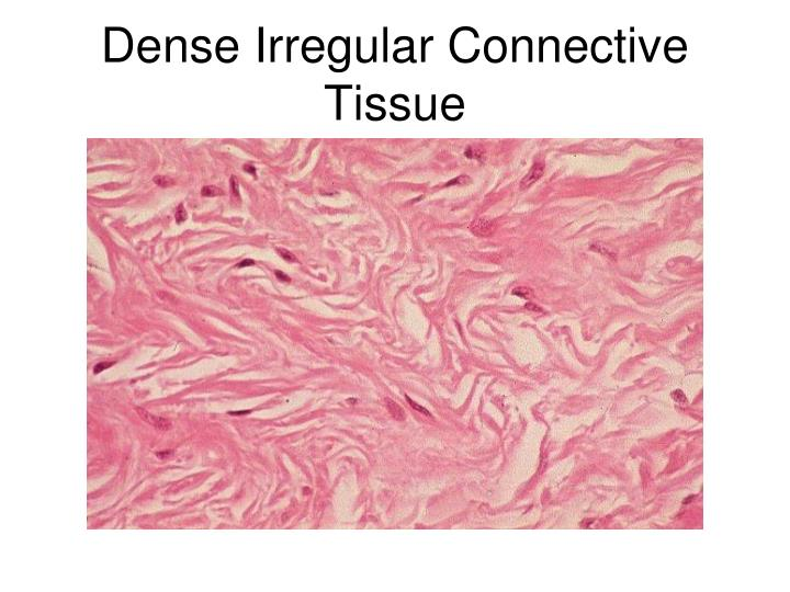 Dense Irregular Connective Tissue