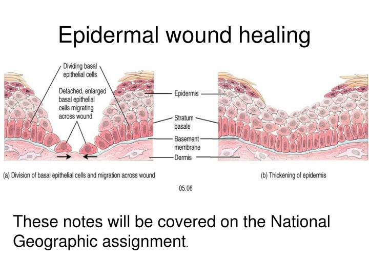 Epidermal wound healing