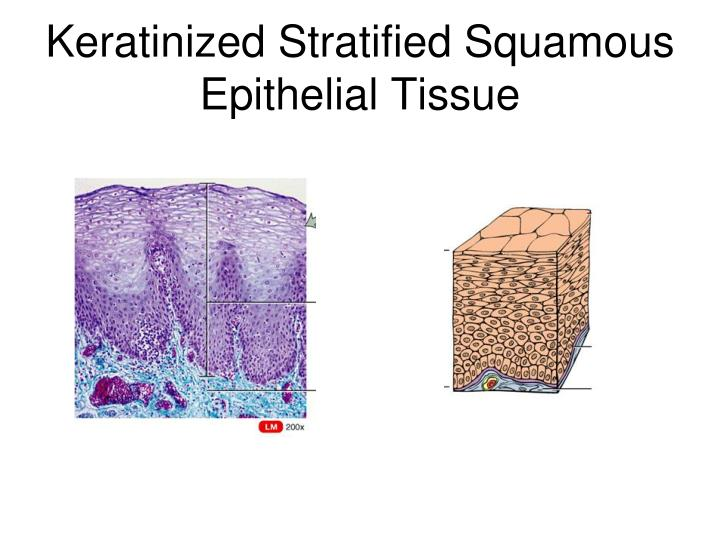 Keratinized Stratified Squamous Epithelial Tissue
