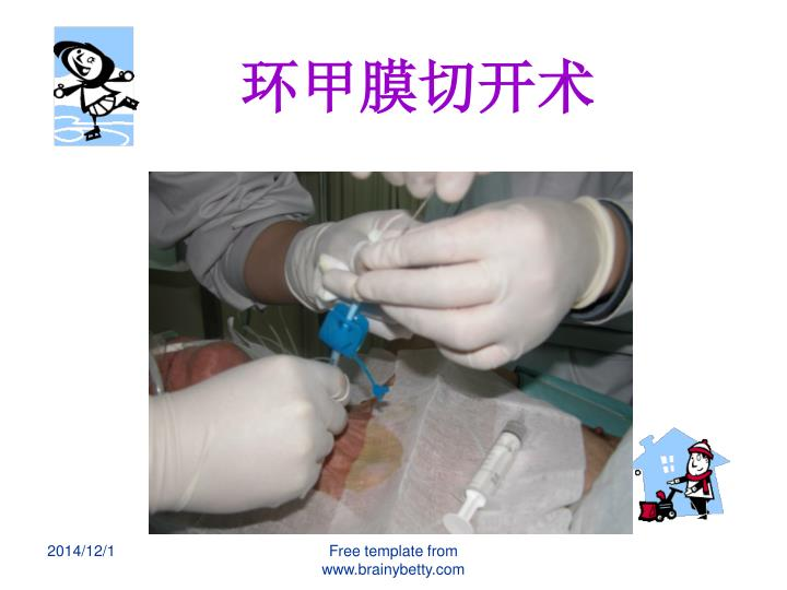环甲膜切开术