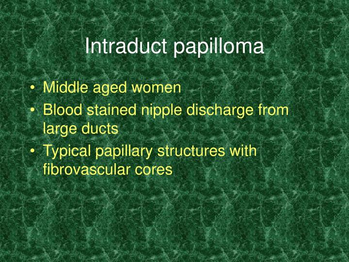 Intraduct papilloma