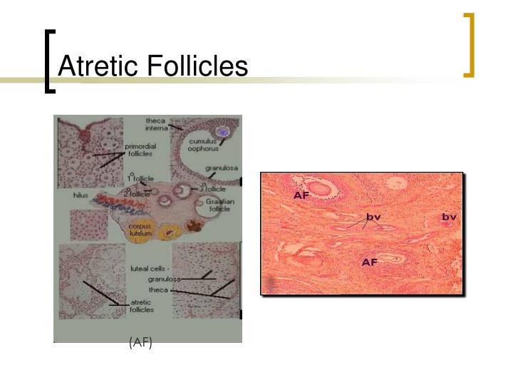 Atretic Follicles