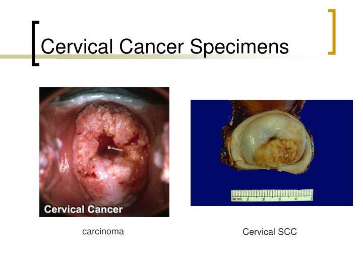 Cervical Cancer Specimens