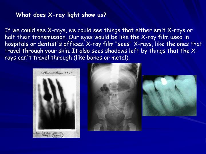 What does X-ray light show us?