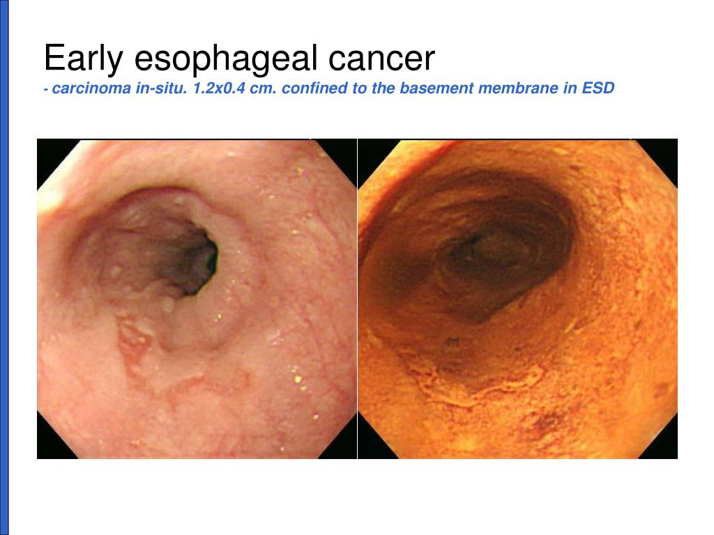 squamous cell carcinoma in situ esophagus