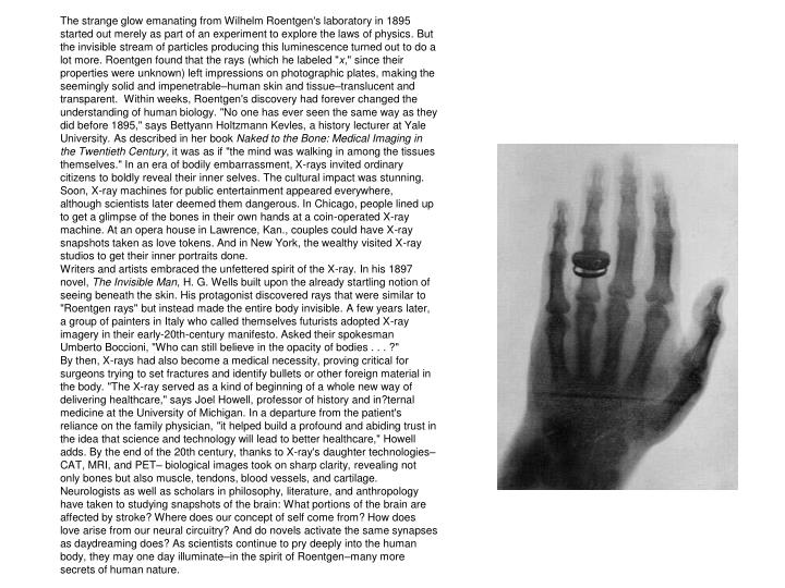 The strange glow emanating from Wilhelm Roentgen's laboratory in 1895 started out merely as part of ...