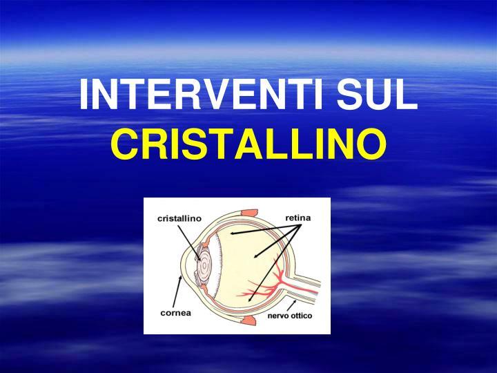 INTERVENTI SUL