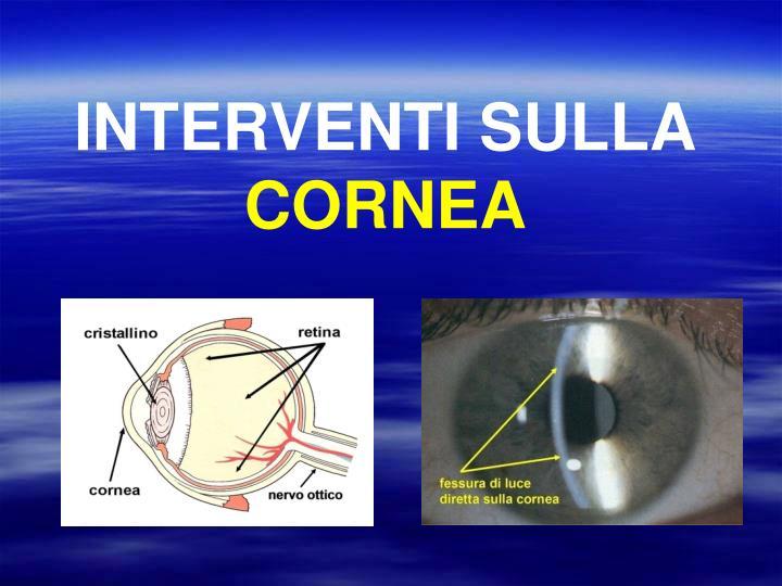 INTERVENTI SULLA