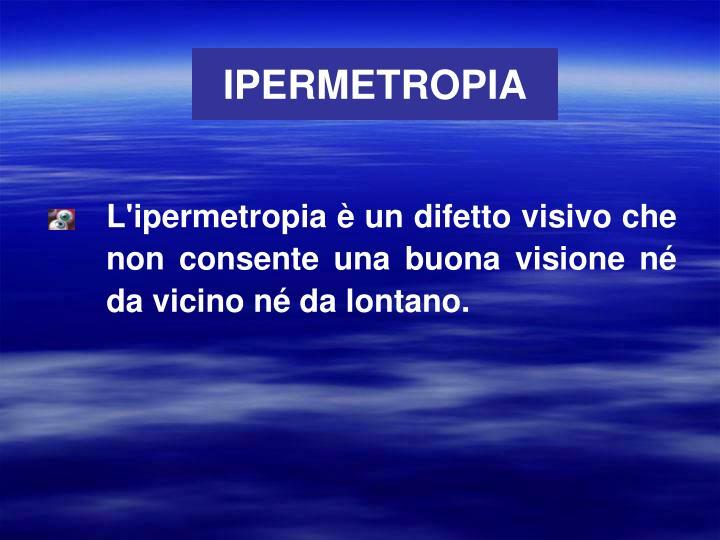 IPERMETROPIA