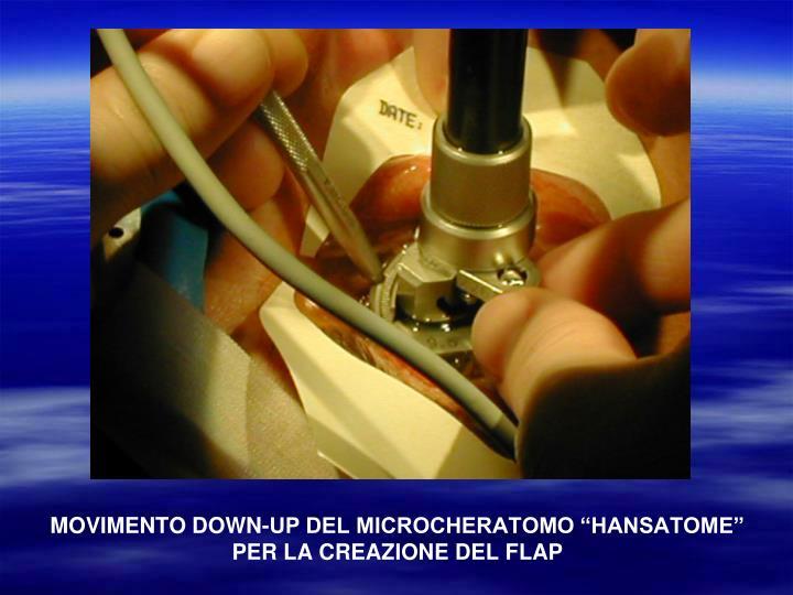 """MOVIMENTO DOWN-UP DEL MICROCHERATOMO """"HANSATOME"""" PER LA CREAZIONE DEL FLAP"""