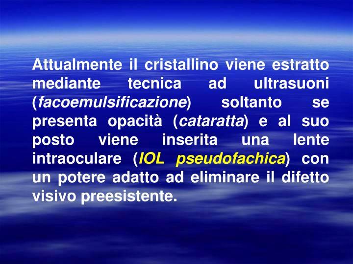 Attualmente il cristallino viene estratto mediante tecnica ad ultrasuoni (